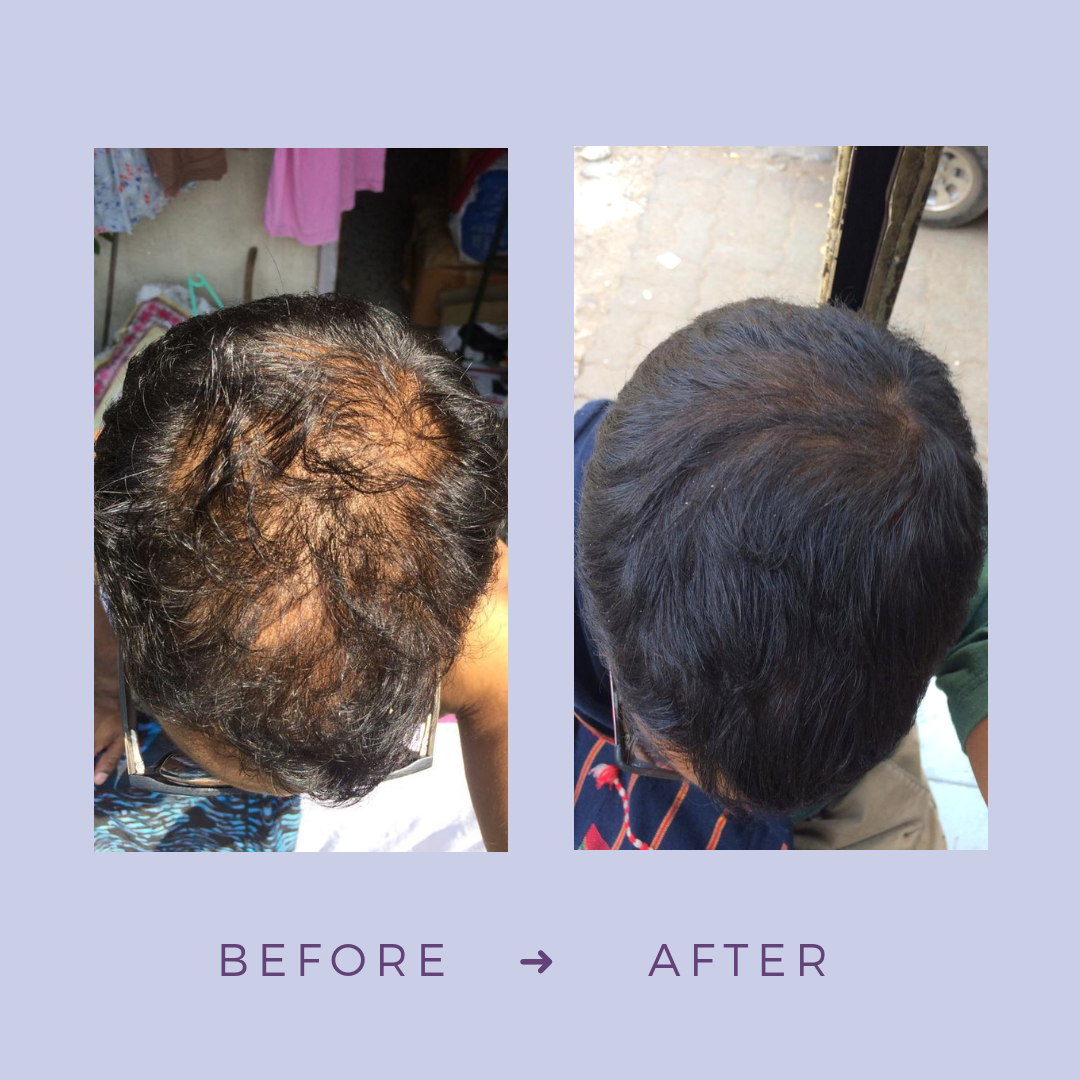 IG-post_-Before-After